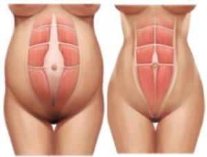 abdominoplastia2