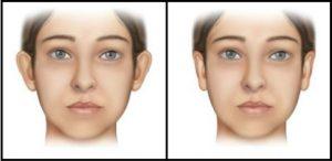 como-e-feito-cirurgia-orelha-de-abano