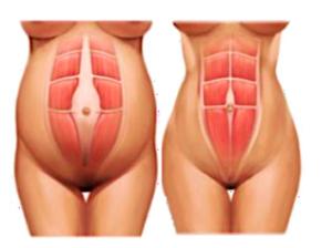 Plicatura abdominal