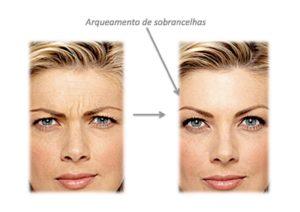 antes e depois toxina botulinica