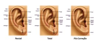 fissura lobulo orelha