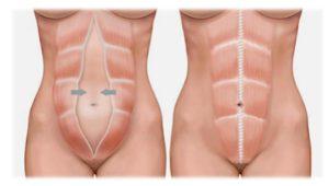 miniabdominoplastia diastase