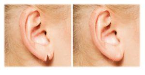 orelha bifida