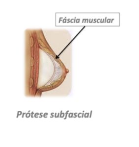 prótese subfascial