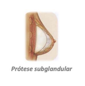 prótese subglandular