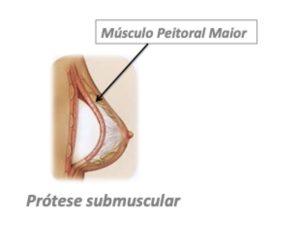 prótese submuscular